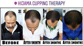 Hair Growth Results By Hijama Cupping Therapy