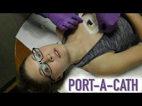 HOW TO ACCESS A PORT-A-CATH (IMPLANTED PORT)