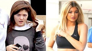 Check Out Kylie Jenner's Changing Looks As She Says Goodbye To Fillers!