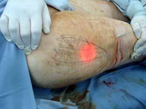 laser-qatar-dubai-liposuction-dr. kamal saleh-al emadi hospital