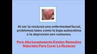 Como Curar La Rosacea - Remedios Para Tratar La Rosacea Naturalmente