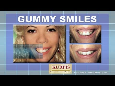 Gummy Smiles / Lip Lowering