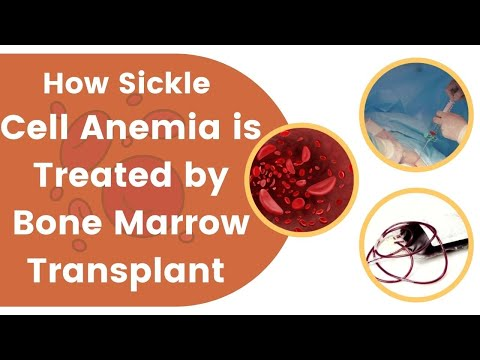 How Sickle Cell Anemia Is Treated By Bone Marrow Transplant