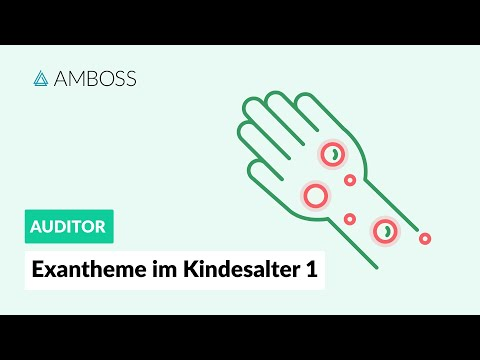 Exantheme im Kindesalter Teil 1 - Differentialdiagnosen- AMBOSS Auditor Fokus