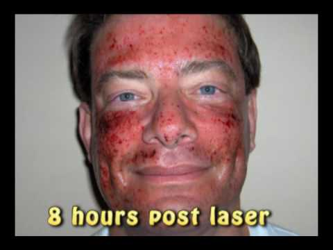 Laser skin resurfacing