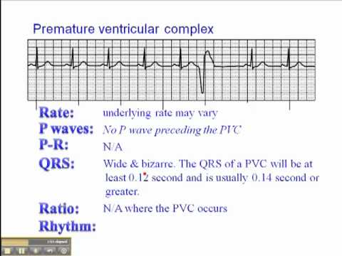 ECG: Premature Ventricular Complexes (PVC) - YouTube