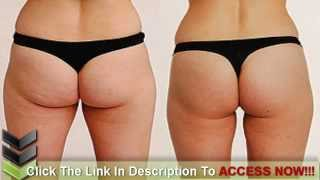 The Quick and Easy Home Remedies For Cellulite