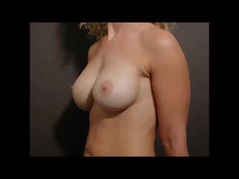 Can Massaging Breast Increase Size  - Causes Breast Increase Size video