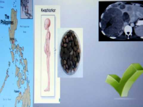 Protein The  problem with animal protein and fat: Holistic health - Restoring a natural rhythm