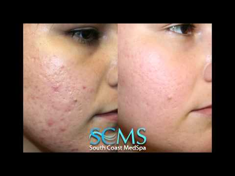 Laser Acne Scar Removal: Before/After Female, Fair Skin