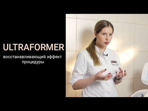 Ultraformer - восстанавливающий эффект процедуры