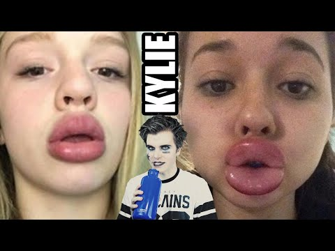 The Kylie Jenner Challenge (Swollen Lips Challenge)