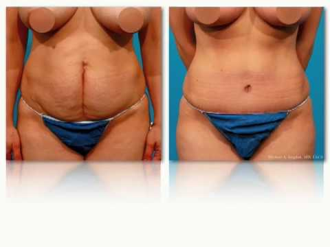 Abdominoplasty - Tummy Tuck - Informational Video - Michael Bogdan - Dallas Texas