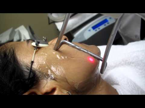Laser Hair Removal with Fotona Laser in Los Angeles ,Orange County and San Gabriel Valley