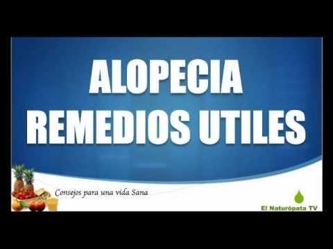Alopecia : Tratamientos para la alopecia