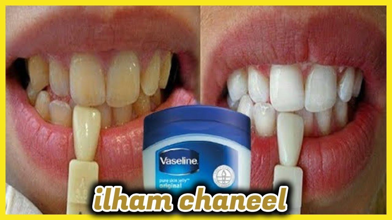 ماذا يحدث عند دهن اسنانك بالفازلين ...سوف يغير حياتك للابد،،،!