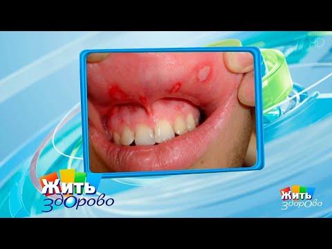 Стоматит на языке у взрослых - лечение препаратами, симптомы, причины, фото стоматита