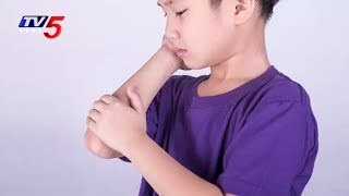 Reason for Arthritis in Children | Good Health | TV5 News