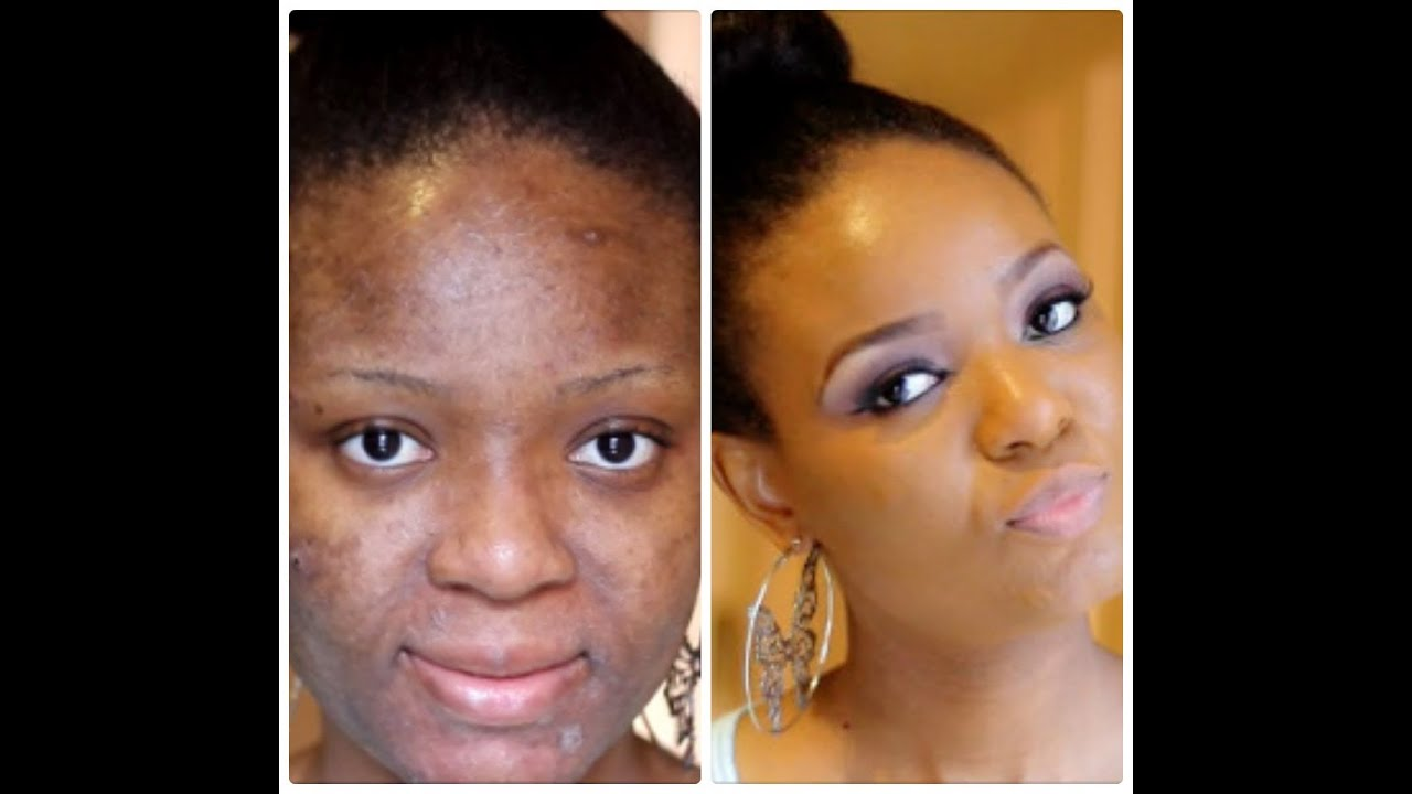how to cover dry flaky skin quick makeup tip   youtube