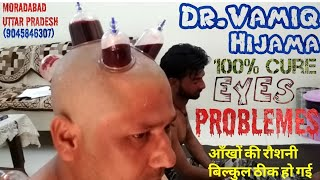 Hijama for Weak Eyes Sight (Dr.Vamiq Hijama Center) || Cupping Therapy || Moradabad UP (India)
