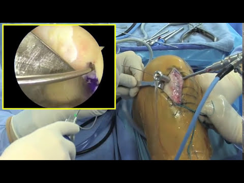 ACL Reconstruction using patellar tendon