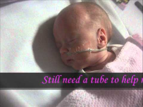 Premature Babies (Amelia 26 weeks) - YouTube