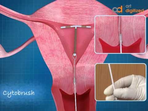 IUD CopperT Animation | ADMAA
