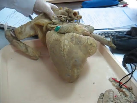 Corazón de Bovino I