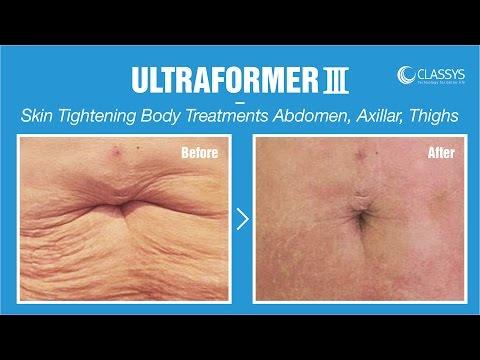 ULTRAFORMERㅣSkin Tightening Body Treatments - Abdomen, Axillar, Thighs