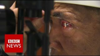 Chinese man given pig's cornea - BBC News
