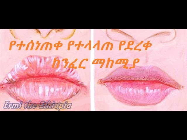 [ Amharic ] How To Treat Dry Cracked Chapped Lips