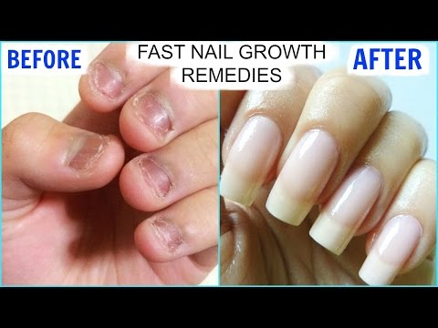 How To GROW Long Strong Nails Fast At Home   SuperPrincessjo
