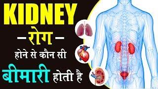 किडनी रोग होने के बाद ये अंग भी हो जाते हैं खराब | KIdney Infection Treatment in Ayurveda