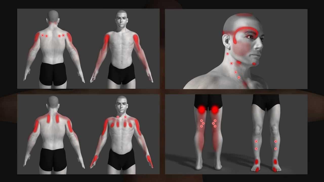 Triggerpoints nek masseren