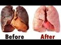 Cách lọc SẠCH PHỔI trong 3 ngày thậm chí người đã hút thuốc 40 năm cũng SẠCH