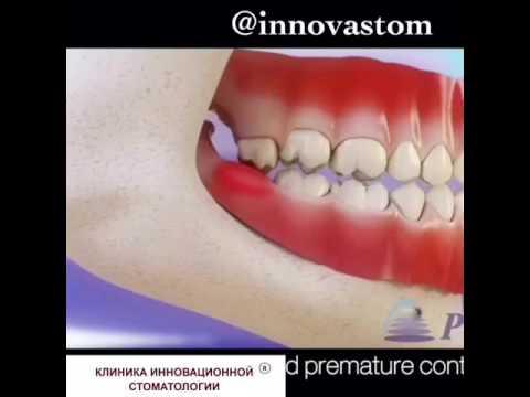 Поликлиника зуб мудрости отзывы