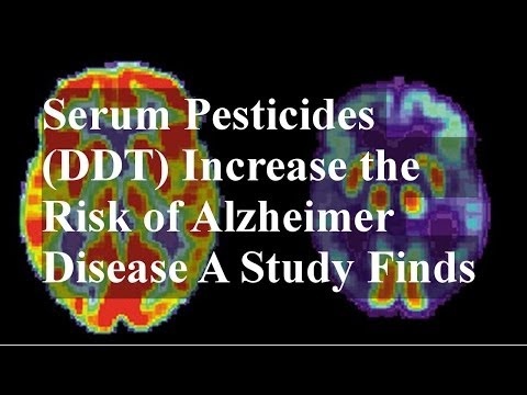 Serum Pesticides (DDT) Increase the Risk of Alzheimer Disease A Study Finds