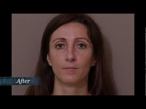 Houston Rhinoplasty Surgery - Call (713) 999-4366 or visit http://www.houston-plasticsurgeons.com/rhinoplasty/ today to schedule a no-obligation rhinoplasty consultation with Dr. Clayton Moliver or Dr. Kendall Roehl.