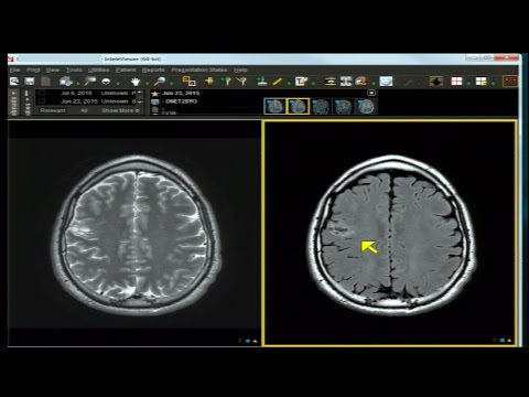 Neuro Imaging Board and Recredentialing Review 4