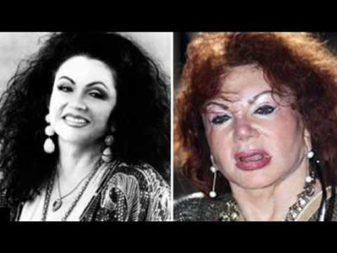 Top Ten Worst Plastic Surgery Disasters.