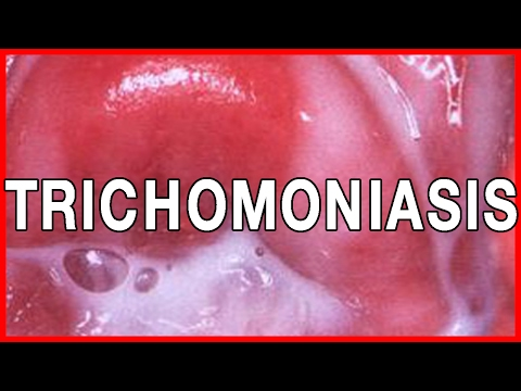 trichomoniasis on wikinow | news, videos & facts, Cephalic Vein