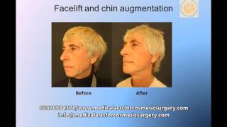 Facelift and chin augmentation performed by Dr Vadodaria