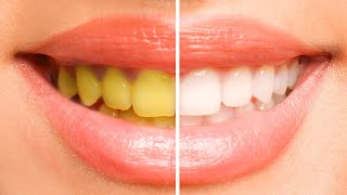Play this video How To Whiten Your Teeth