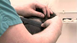 Hair Transplant Clinic in North Alabama