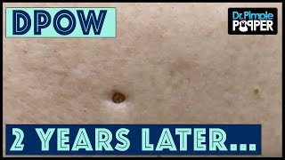 Flip it & Reverse it Blackhead Extraction / Dilated Pore of Winer