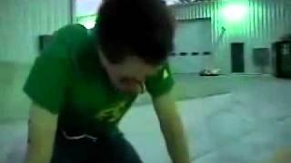 Skater hit in face with skateboard - epic fail