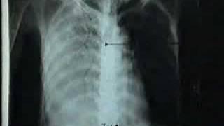 Xẹp phổi và đặc phổi trên phim XQuang
