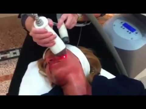 Fraxel Skin Laser Acne Scar Pigment Melasma Stretch Marks Treatment Sydney