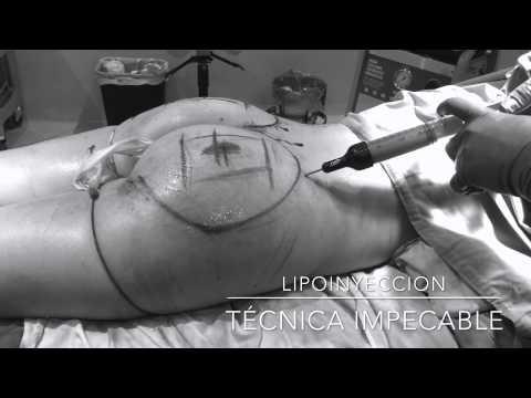 BAJA BUTT. Better known as Brazilian Butt surgery . Bucio Surgicenter.Tijuana, México