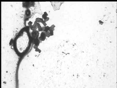 Magnetotactic Bacteria Under Microscope